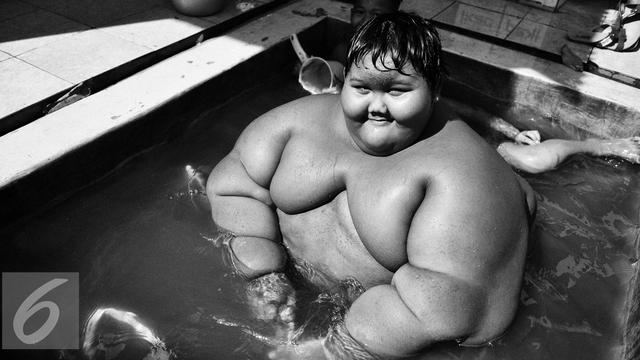 Sunarti obesitas