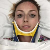 Cerita unik datang dari seorang cewek yang langsung melakukan review eyeliner setelah kecelakaan. Padahal wajahnya masih berdarah-darah lho. (Foto: Shelby Pagan)