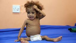 Seorang anak Yaman menderita malnutrisi menunggu menerima perawatan di sebuah rumah sakit di kota Hodeidah, Yaman (8/4). Jutaan orang kelaparan di Yaman setelah dua tahun konflik antara koalisi pimpinan Saudi dan pemberontak Houthi. (AFP Photo/Abdo Hyder)