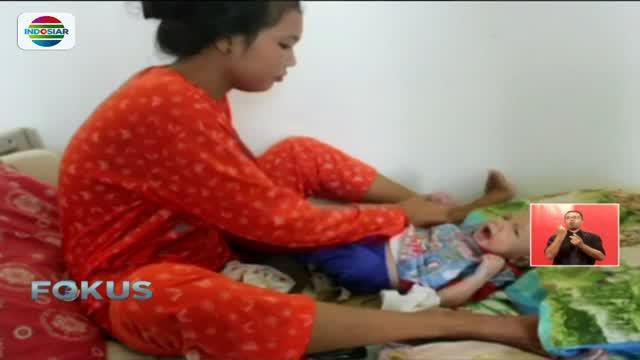 Kondisi Muhammad Adam Syahputra, bayi pendereita gizi buruk akibat diberi susu dewasa mulai membaik.