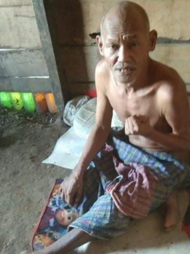 Damianus Nembot (60), warga Dusun Tolok, Desa Lenang, Kecamatan Lamba Leda Selatan, Kabupaten Manggarai Timur, sejak Maret 2020 hingga sekarang menderita stroke. (Liputan6.com/ Dionisius Wilibardus)