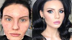 Transformasi wajah berjerawat setelah di makeup. (Instagram/burulkan_team_babaevski_).