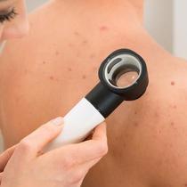 Jerawat punggung dapat menjadi permasalahan kulit tubuh yang paling tidak nyaman. Tapi tak perlu khawatir, coba atasi dengan cara alami. (Foto: iStockphoto)