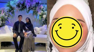 Berkat Makeup, Pengantin dengan Luka Di Wajah Bikin Pangling di Pernikahan