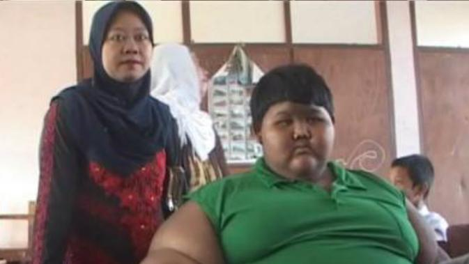 Arya Permana, anak obesitas 190 kg, dibawa ke rumah sakit
