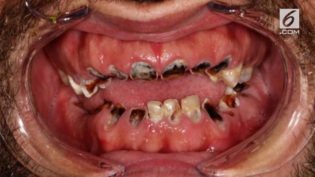 Konsumsi minuman bersoda terlalu sering memberikan dampak buruk pada gigi seorang pria asal Irlandia, Michael Seridan.