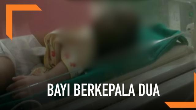 Bayi yang lahir dengan memiliki dua kepala di Brebes akhirnya meninggal dunia saat dirujuk ke RS Hasan Sadikin Bandung.