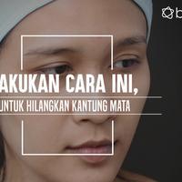 Kantung mata memang bikin penampilan jadi nggak banget. (Foto: Adrian Putra/Bintang.com, Digital Imaging: Muhammad Iqbal Nurfajri/Bintang.com)
