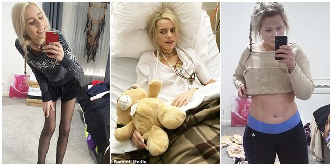 Elle harus dirawat karena dietnya yang di luar batas wajar (kiri) dan kini akhirnya bisa kembali pulih (kanan). | Foto: copyright dailymail.co.uk
