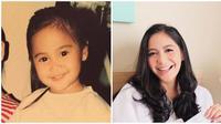 Potret transformasi Caca Tengkaer sejak dulu hingga kini. 9Sumber: Instagram/@cacatengker)