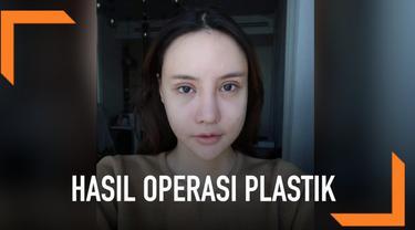 Seorang gadis Thailand menunjukkan tahap-tahap perubahan pada wajahnya setelah menjalani operasi plastik. Wajahnya sempat bengap, terlihat seperti habis kecelakaan. Namun, setelah itu hasilnya pun sungguh menakjubkan!