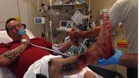 Gara-gara rokok elektrik meledak, kaki dan tangan pria ini bersimbah darah. (Foto: Daily Mail)