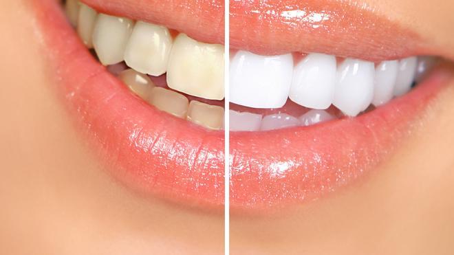 Hasil gambar untuk gigi putih