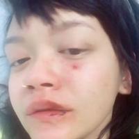 Melalui unggahannya Dylan Sada memperlihatkan wajahnya yang babak belur usai dipukuli. (Foto: Instagram)