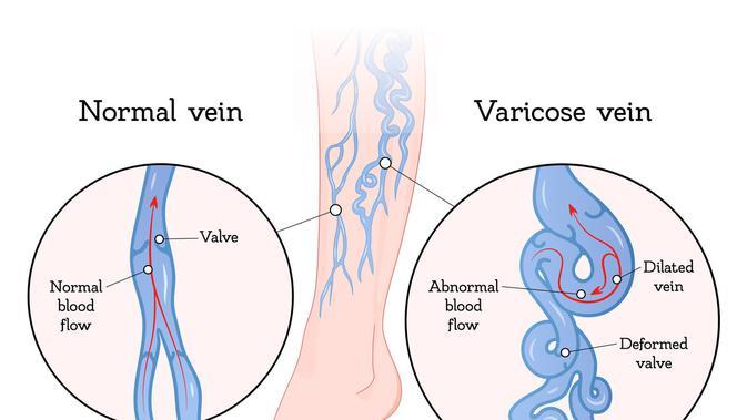 dacă bandaje elastice ajută la varicoză cum să identificați varicoza sau nu