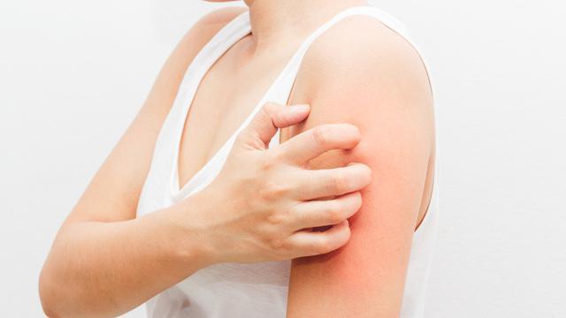 Image result for Antibiotik tidak bisa mengobati penyakit yang disebabkan oleh virus