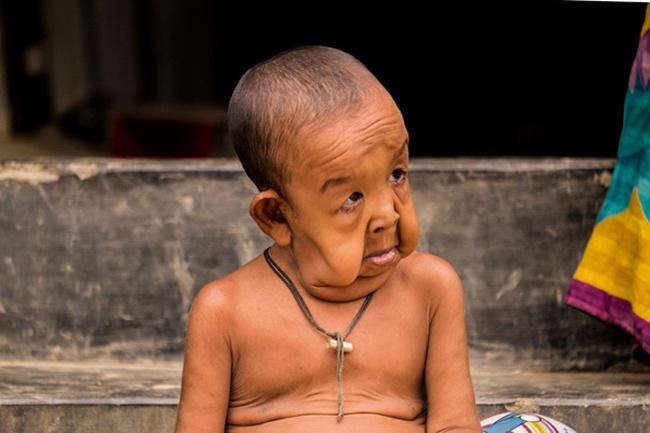 Bayezid yang masih berusia 4 tahun terlihat seperti seorang kakek berusia 80 tahun   Photo: Copyright asiantown.net