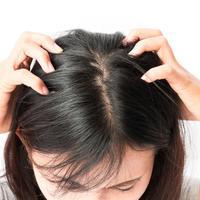 Fakta Tentang Kutu Rambut yang Anda Harus Tahu