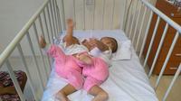 Potret Bayi Kembar Siam, Adam dan Malik yang akan menjalani operasi pemisahan. Saat ini kedua orangtua butuh dana untuk biaya operasi anak mereka (Reza Efendi/Liputan6.com)