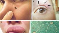 Benjolan yang bergerak di kelopak mata wanita ini rupanya berisi cacing parasit. (The New England Journal of Medicine)