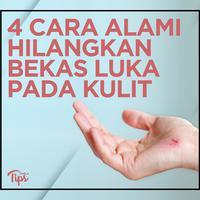 4 Cara Alami dan Ampuh untuk Hilangkan Bekas Luka pada Kulit