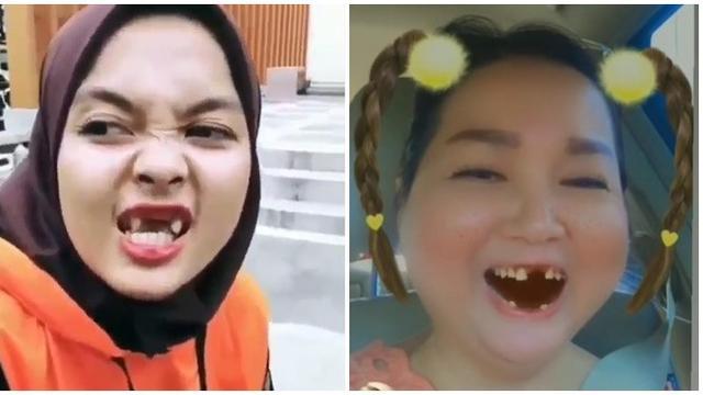 6 Kelakuan Kocak Orang Gigi Ompong Ini Bikin Susah Tahan Ketawa Hot Liputan6 Com
