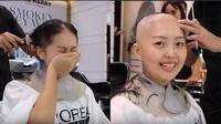 Bikin Terenyuh, Ini Momen Haru Wanita yang Berjuang Setelah Kemoterapi Kanker Limforma (sumber: Youtube.com/Nadya Valerie)