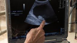 Ultrasound dari badak putih selatan betina, Victoria di Taman Safari Kebun Binatang San Diego, Escondido, California, AS, Selasa (15/5). Victoria mengandung bayi badak putih utara melalui inseminasi buatan. (Tammy Spratt/San Diego Zoo Global via AP)