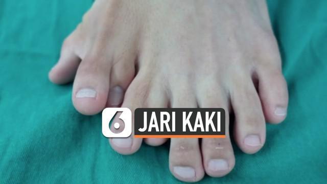 Seorang remaja China memiliki 9 jari pada kaki kirinya. Ia menjalani operasi pengurangan jumlah jari kaki kiri selama 9 jam.