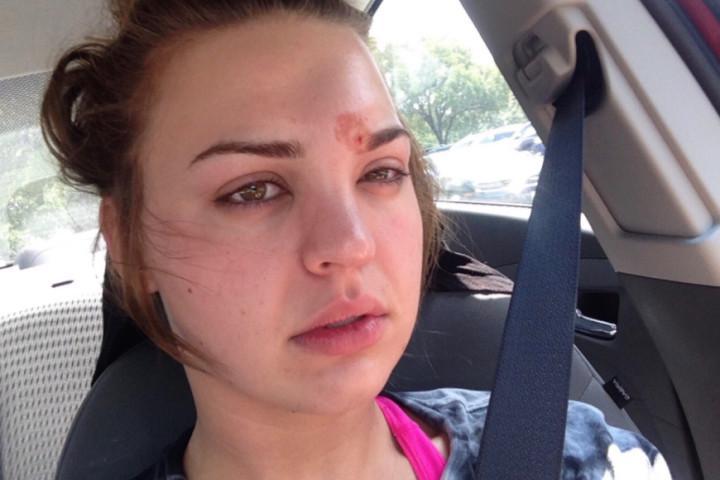 Katie Wright (21) terkena infeksi kulit dari kuas alisnya. Source: Shared.com
