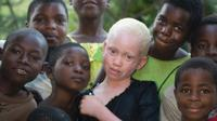 PBB menyatakan, jika pembunuhan albino terus berlanjut, mereka akan segera 'punah' (Amnesty/BBC)