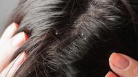 Garam dapat digunakan untuk mengurangi ketombe di area rambut yang ada di kepala