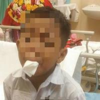 Diancam akan ditinju lagi oleh lima temannya, bocah ini pilih memotong lidahnya menggunakan gunting.