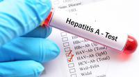 5 Fakta Hepatitis A, Penyakit yang Sedang Mewabah di Pacitan (sumber: iStockphoto)