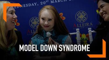 Madeline Stuart menjadi sosok inspiratif karena kariernya  yang cemerlang di dunia model internasional meski ia mengidap down syndrome.