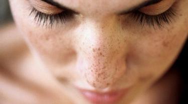 Cara Menghilangkan Flek Hitam Di Wajah Yang Membandel Secara Alami Dengan Cepat Beauty Fimela Com