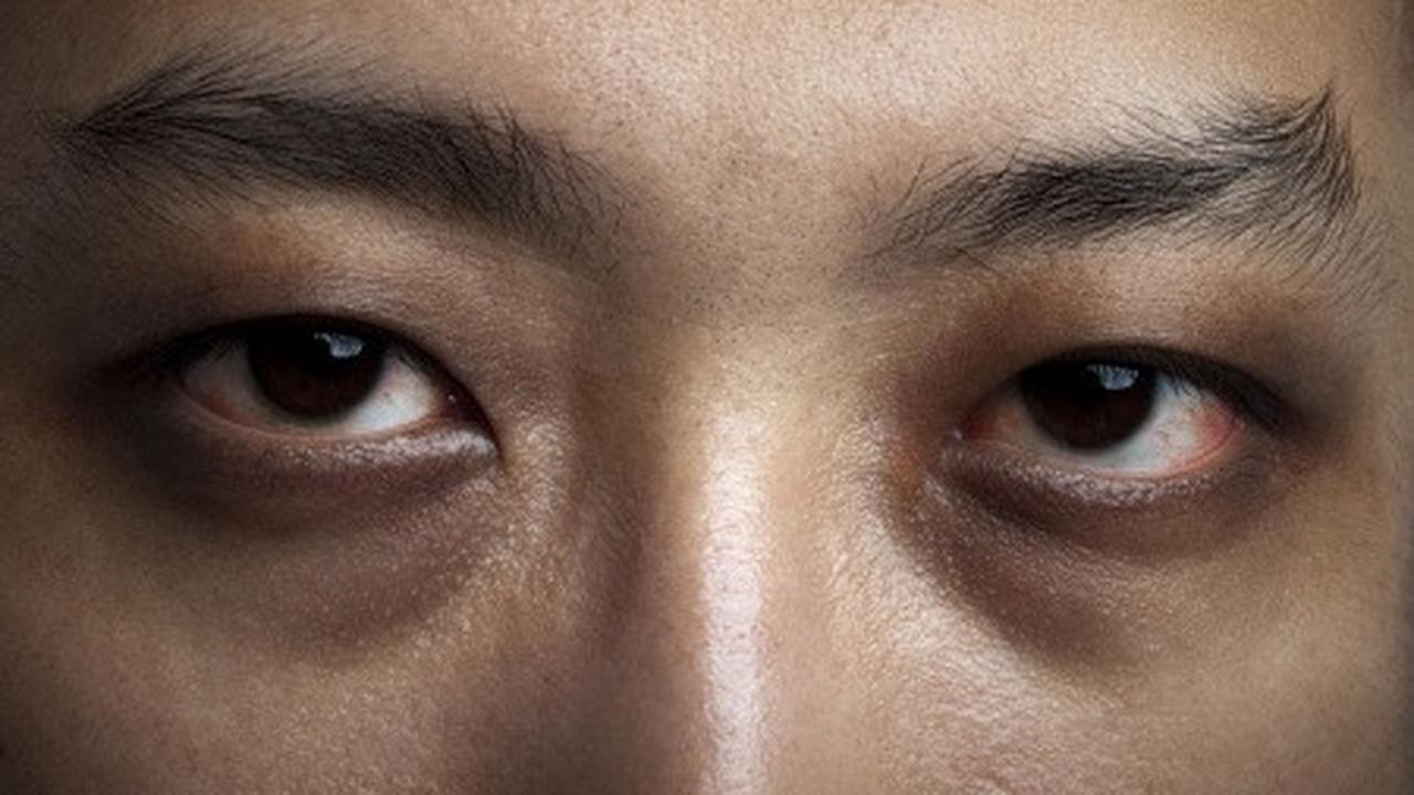 Patut Dicoba, 7 Cara Mudah Hilangkan Kantung Mata Mengganggu