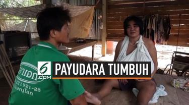 Seorang wanita mengalami penyakit aneh di Thailand. Payudaranya tumbuh tidak terkendali sehingga membuatnya sulit berjalan.