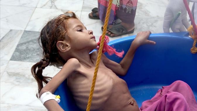 Seorang gadis yang menderita gizi buruk ditimbang di Pusat Kesehatan Aslam di Hajjah, Yaman, 25 Agustus 2018. Kelaparan diperparah dengan meningkatnya harga kebutuhan pokok dan turunnya nilai mata uang Yaman akibat konflik. (AP Photo/Hammadi Issa)