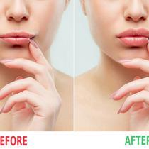Kondisi Bibir Sebelum dan Sesudah Menggunakan Cara Ini / Sumber: iStockphoto