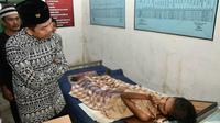 Kisah Salipudin si Pemilik 'Kaki Busuk' di Cirebon. (Liputan6.com/Abramena)