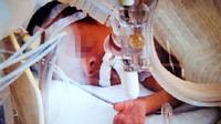Seorang anak bayi yang telah dinyatakan meninggal dunia, hidup kembali keeskoan harinya ketika hendak dikremasi. (perthnow.co,au)