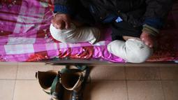Penderita kusta duduk di ranjang kompleks RS Van Mon Leprosy, Thai Binh, Vietnam, Minggu (20/1). RS Van Mon Leprosy pernah menangani hingga 4.000 pasien dalam setahun. (Manan Vatsyayana/AFP)