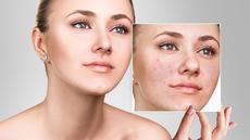 Kiat Memilih Kosmetik untuk Wajah Berjerawat