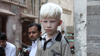 Orang Albino / Sumber: Pixabay