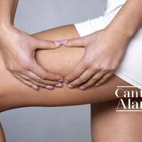 Ilustrasi adanya selulit di permukaan kulit. (boldsky.com)