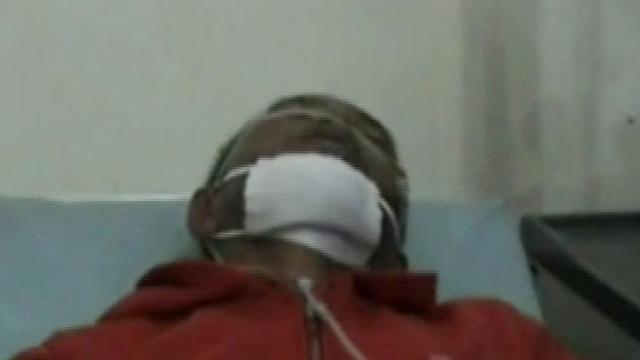 Di Purwakarta jawa Barat terdapat ratusan warga yang keracunan Gas yang bocor dari salah satu pabrik.
