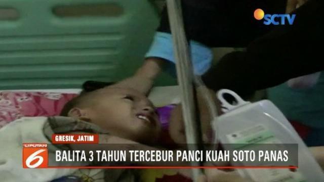 Seorang balita tercebur ke panci isi kuah soto panas saat sang ibu menyusui adik korban.