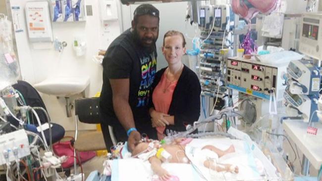 Bayi Eloise saat dalam perawatan : foto: copyright madworldnews.com