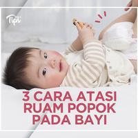Cara Ampuh Mengatasi Ruam Popok pada Bayi